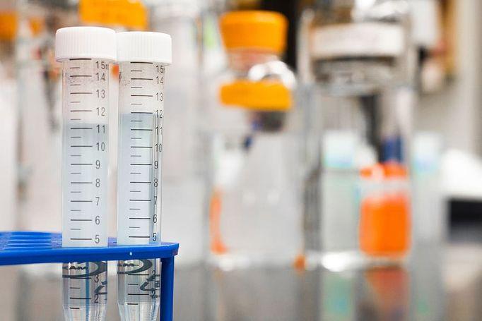Epidemiologai vertina situaciją Kartenoje